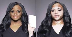 Descoberta a cura para o vitiligo!!!